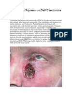 Cutaneous Squamous Cell Carcinoma