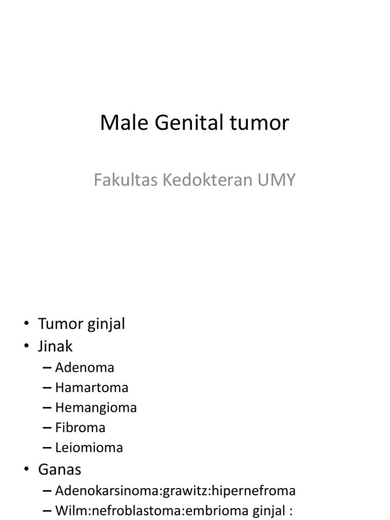 adenoma prostatico y testicular cyst