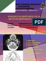 Anatomia del cerebro UNMSM