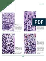 Cervicite Folicular