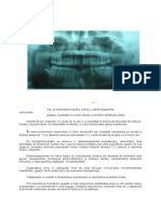 chisturi maxilare cazuri clinice