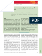 Advances in Neuroimaging in Frontotemporal Dementia