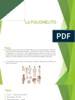 La Poliomelitis