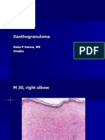 Xanthogranuloma .,M 30, Right Elbow