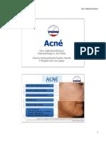 actualización acne