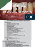 EPIDEMIOLOGIA PERIODONTITIS