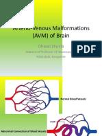 Avm brain 1.pptx