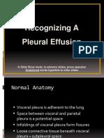 4.Pleural Effusion