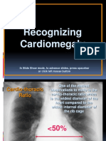 7.Recognizing Cardiomegaly