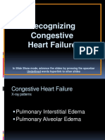 9.Congestive Heart Failure