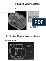 II Arritmias Cardíacas SLIDES