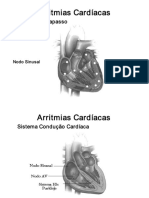 Arritmias Cardíacas SLIDES