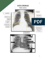 289967535-1-Ringkasan-Radiologi.pdf