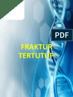 fraktur-tertutup-ppt