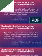 Clasificación de Galassi de Los Quistes Aracnoideos