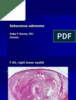 Sebaceous Adenoma, F 65, Right Lower Eyelid.