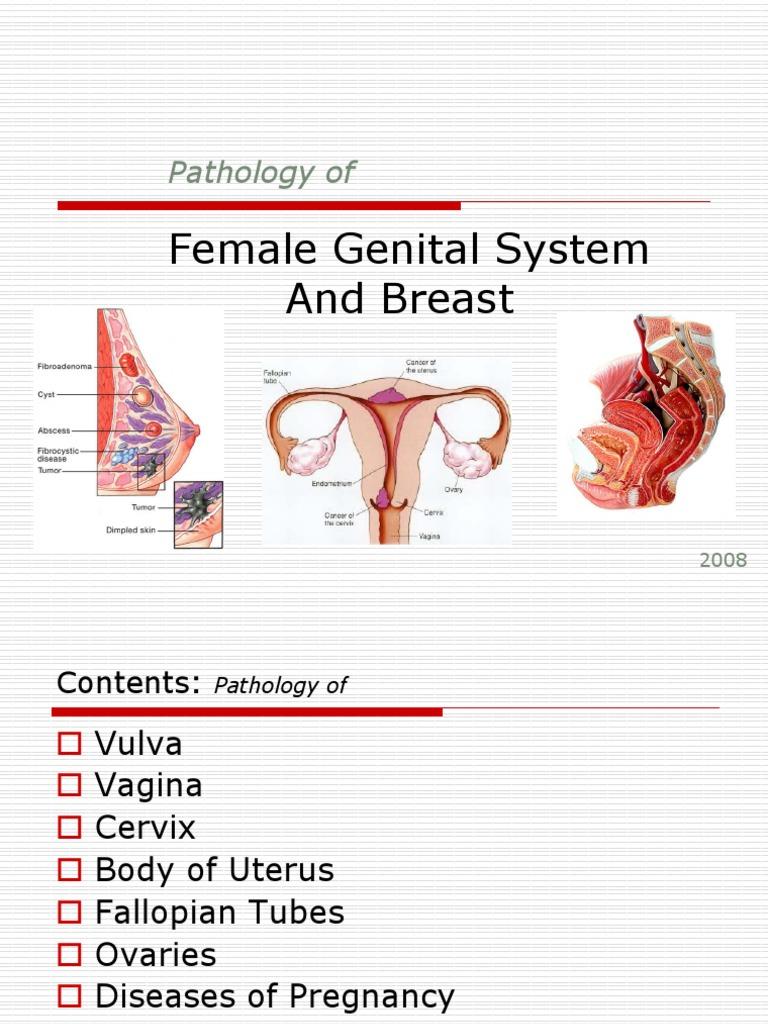 contoh ppt | Ovarian Cancer | Cervical Cancer