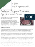 Scalloped Tongue – Treatment Symptoms and Causes – Scalloped Tongue