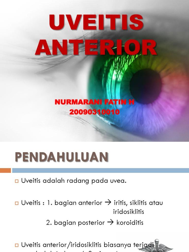 obturator de acuitate vizuală cum să vindeci vederea prin carte