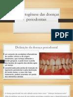 Etiopatogênese Das Doenças Periodontais