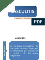vasculitis-140818162326-phpapp02