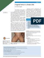 Bilateral Inguinal Hernia Female