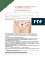 CARCINOMA DE CERVIX UTERINO.docx
