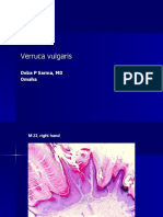 Verruca Vulgaris., M 22.