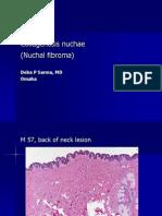Collagenosis Nuchae (Nuchal fibroma), M 57, Back of Neck