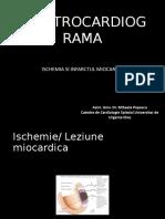 C3 - EKG IMA, hipertrofii.pptx