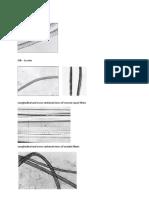 Identification Des Fibres Au Microscope