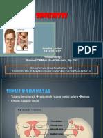 Sinusitis Amel