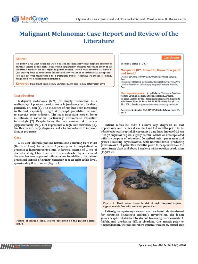 metastasis ganglionar por melanoma