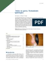 06 - Dedos en Garra. Tratamiento Quirúrgico