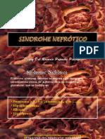 sindromenefrtiico-131016134405-phpapp02