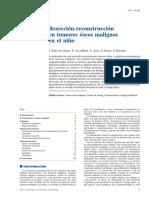 01 - Resección-reconstrucción en Tumores Óseos Malignos en El Niño