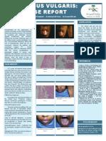 Pemphigus vulgaris.pdf