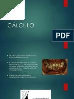 Cálculo  Periodoncia