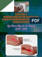 Chapter 23 Postpartum Complication