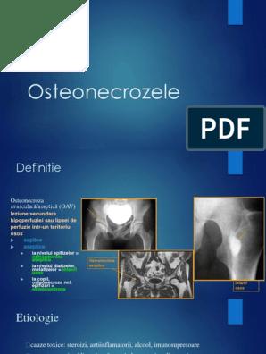 osteoscleroza subcondrală a tratamentului articulației umărului