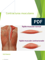 Contracturas musculares