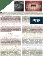 Guided Transplantation Teeth