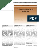 Arteritis de Celulas Gigantes