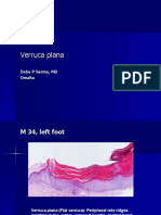 Verruca Plana, M 34, Left Foot. PPT