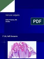 Verruca Vulgaris, F 16, Left Forearm.