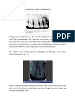 Radiografi Periodontal Abses