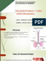 Tubo Traqueotomia y Tubo Endotraqueal