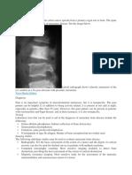 Metastase Bone Disease