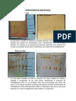 Cromatografía de Lípidos de Yema de Huevo