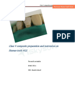 Class v Composite Preparation and Restoration on Human Toothpdf-Copy